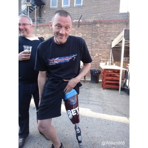 The Ribman: Hardcore fan? Get a West Ham Shirt embedded into your leg